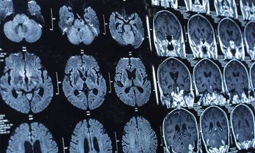 Image of brain scans.